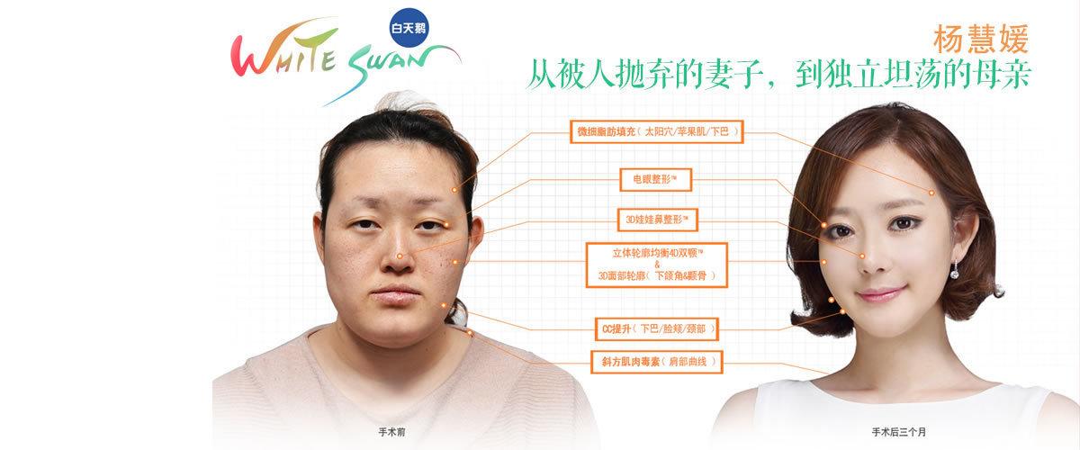 杨慧媛 从被人抛弃的妻子,到独立坦荡的母亲